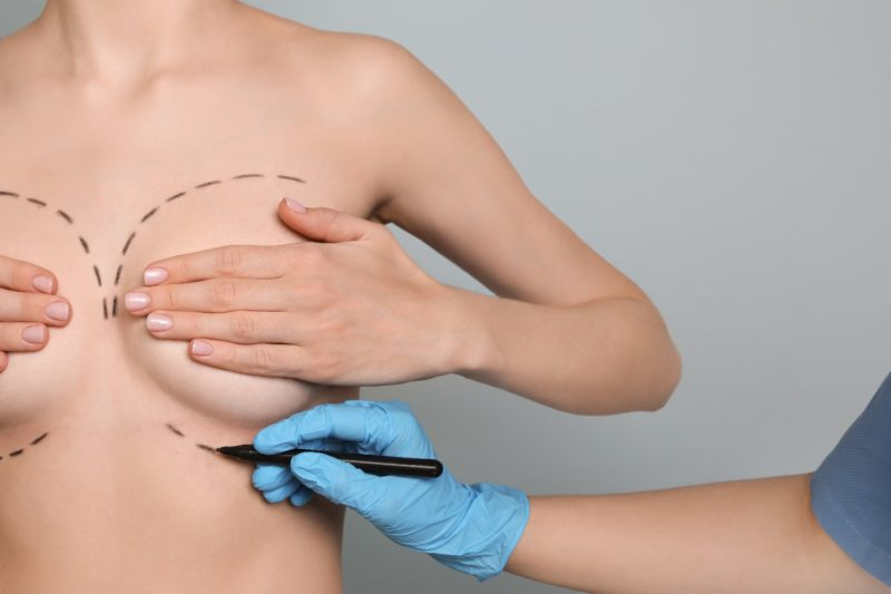 A cosmetic surgeon drawing on the breast area with a marker before a breast lift procedure to identify surgical site.