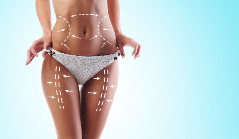 A female model showing the body areas that liposuction can treat
