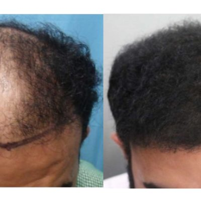 A before and after picture of a patient who underwent a hair transplant at Aesthetic Surgery Institute, Houston (TX).